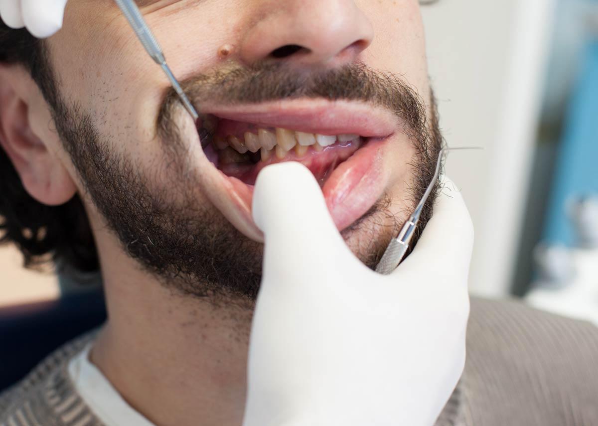Stomatološki pregled zuba u klinici Jovšić
