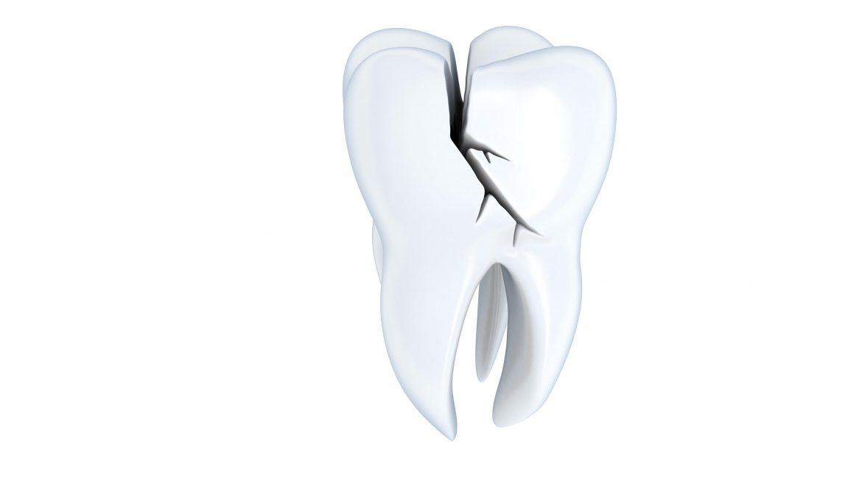 Stomatološki pregled deteta sa traumatskom povredom zuba 2