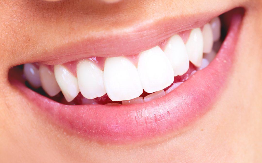 Zubni kamenac 1